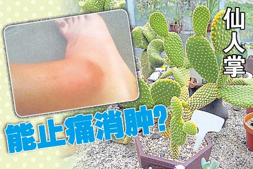网上流传这则仙人掌药效惊人, 不止扭伤消肿,还能治发炎,简直神奇好用又方便,因为大多住家都能找到仙人掌,是否真的如此神奇?