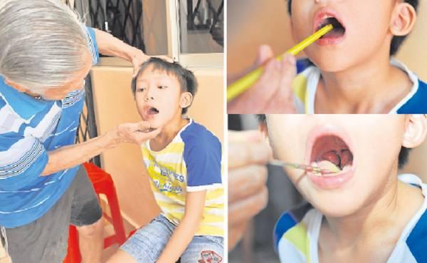 陈老伯替小病人诊疗,然后就用吸管把药粉吹进他的喉咙里。