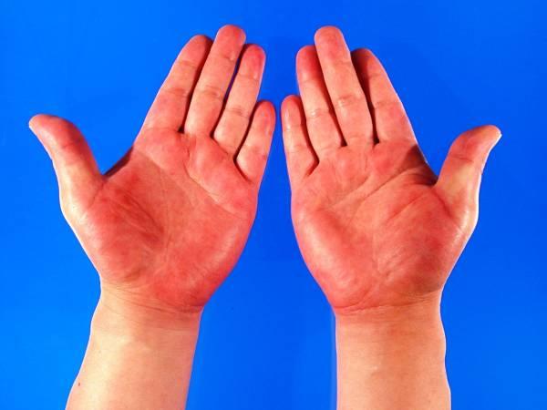 手掌亦异如常人,血红如肝掌,犹如帮人堕胎后,沾满鲜血的手。