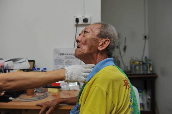 电流点穴除了医治奇难杂症,对于一些小毛病也很有效,如这位老伯便因喉咙痛而来进行电流点穴。