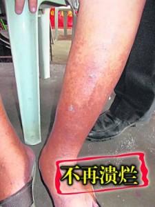 曾经饱受皮肤溃烂折磨的蓝佩英,经过颜医师圣手治疗后,皮肤不再血脓烂湿。