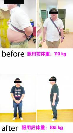 Heng,25岁(服用Yogurugen一个月)
