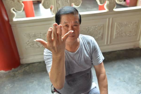 长年累月帮人推拿按摩,王师傅的手指已经严重弯曲走形。