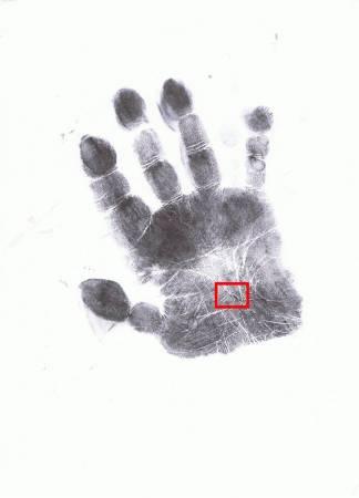 通过掌纹可提前观察到有中风的隐患,并可在中风后争取在第一时间里治疗,争取早日的康复!
