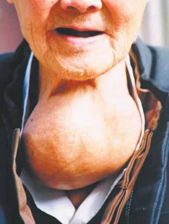 专家提醒,由于甲状腺癌没有任何前期症状,其高危人群,像有家族史、曾患过癌症、嗜好吃海鲜的年轻女性,应每年到医院进行专项检查,不能大意。
