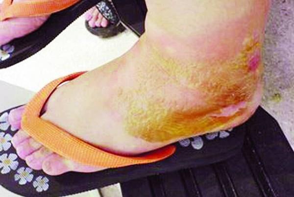 因为祖坟的子孙堂积水,李氏兄弟人人的双脚都肿胀得无法行走,看了医生之后也无法治愈。