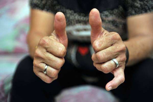 桦姐跟随其师父学习推拿至今已有30多年的时间,拇指经已变形,是她那推拿功力的经验见证。