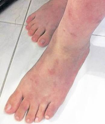 美美双脚无缘无故出现了许多斑点疹,最后竞含脓,屡医难愈。