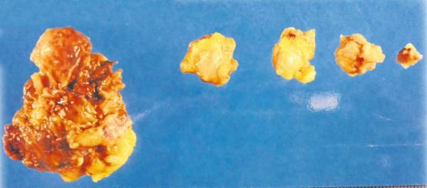 这就是张碧兰切除出来的淋巴肿瘤。