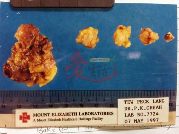 图里就是张碧兰切除出来的淋巴肿瘤。