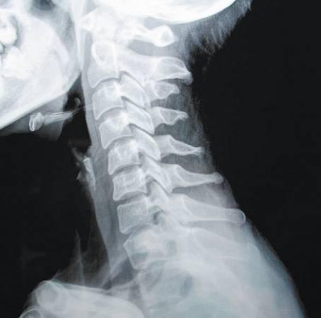 当颈椎受损时,会影响椎动脉与其周围的交感神经,造成各种不适与病症。