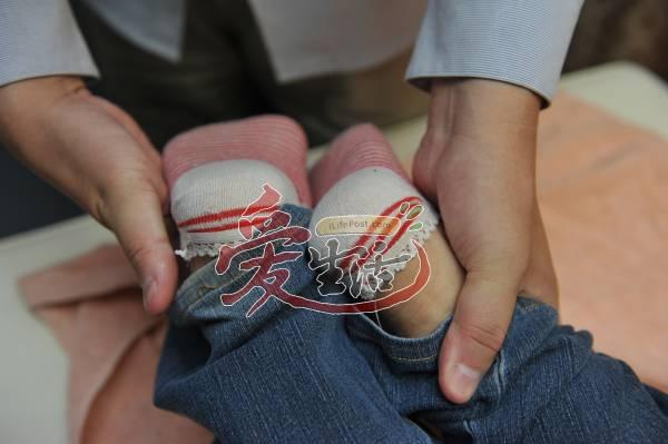 宋医师表示如果双脚合起是这样的差距,代表此人有长短脚。