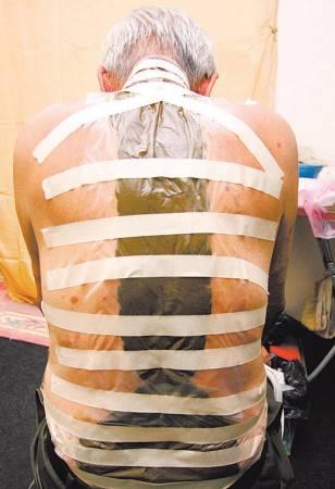 医师将草药敷在林先生腰椎患处,舒缓麻痛症状。