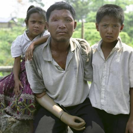 无妄之灾:迪达和儿子钓鱼时误踩炸弹,从此失去了双臂。