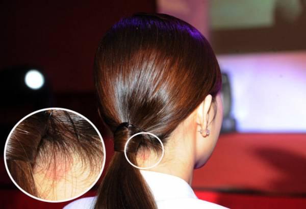 颈后中侧若生有胎记,代表感情经常会遇到波折。