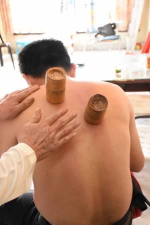 药罐是中药跟竹罐一起用高温煮沸,过后放在伤患处通血祛风。