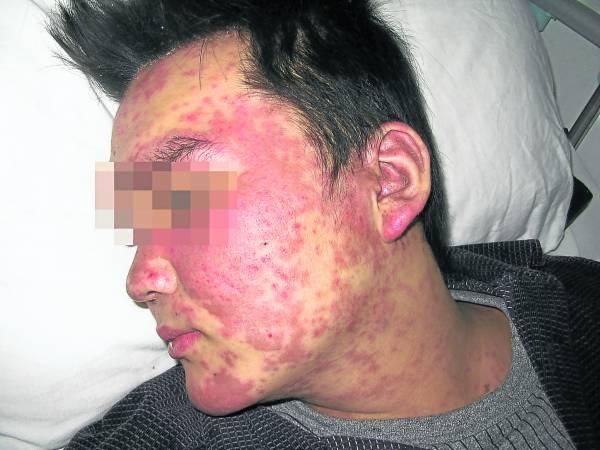 红斑狼疮症被很多人误以为是皮肤病,但其实,它是因人体免疫系统遭到破坏而影响到皮肤。而且,此病不管是中西医都没有一个很好的治疗方案,但网络就流传,把一些中药混合在一起, 就能治疗这难缠的红斑狼疮。