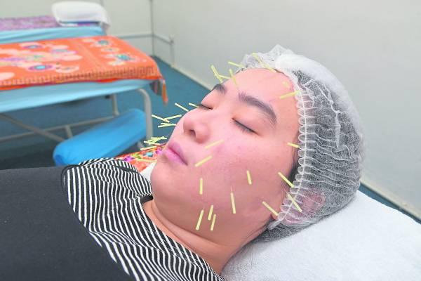 传统针灸美容使用极细的细针在脸部针灸,可以促进胶原蛋白再生、延缓肌肤衰老。