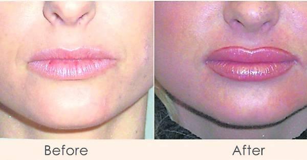 人造皮肤用途广泛,所以非常适用于那些要求严格的各种面部整形手术。