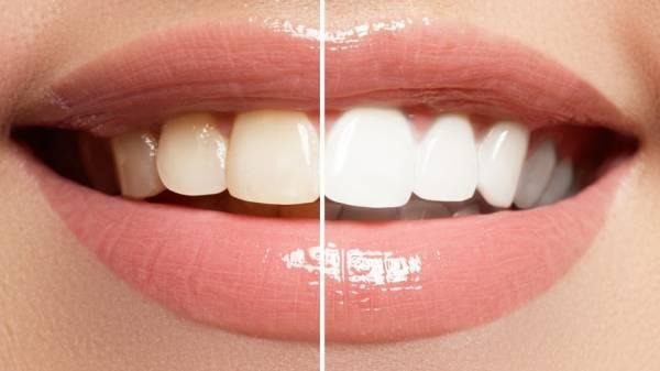 静电吸附效应使灰尘污垢容易沾附于牙齿。(示意图)