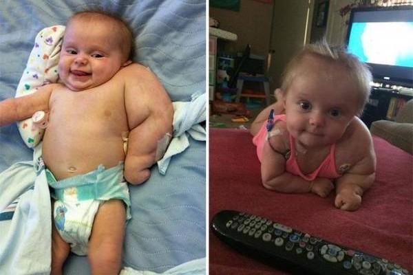 在十个月时,不幸得了一种癌症。为了保住他们的性命,不得不截取了她的左臂。