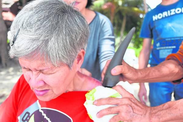 霹雳州红土坎海边出现一位海边怪医,专门以独门的刮痧法替人医病。