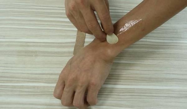 在蚊虫叮咬处涂抹大蒜液涂。
