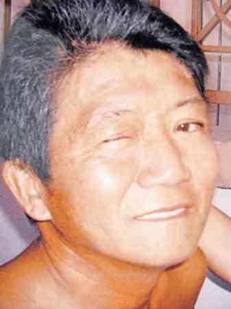 患癌时,一边眼皮已紧盖着眼睛,长不大。