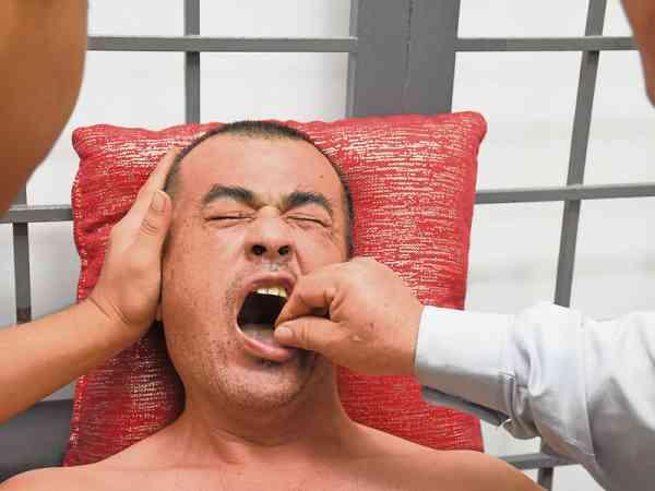 舌针疗法适用于舌头及肢体功能障碍的病症。