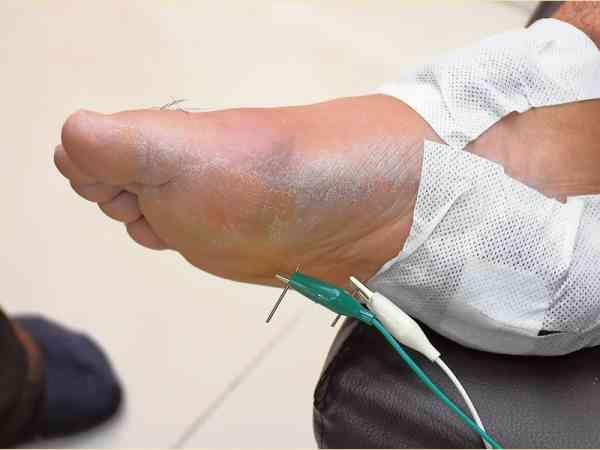中风者主要治疗的穴位在脚板。