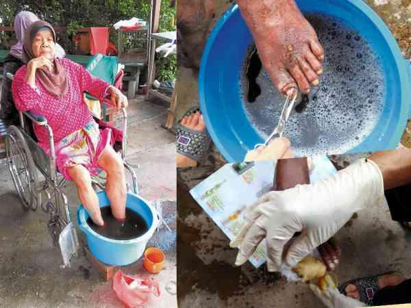 糖尿病患脚趾溃烂,工作人员帮忙清洗伤口和包扎伤口。