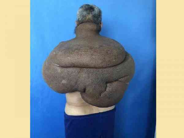 唐男肿瘤几乎覆盖上半身。
