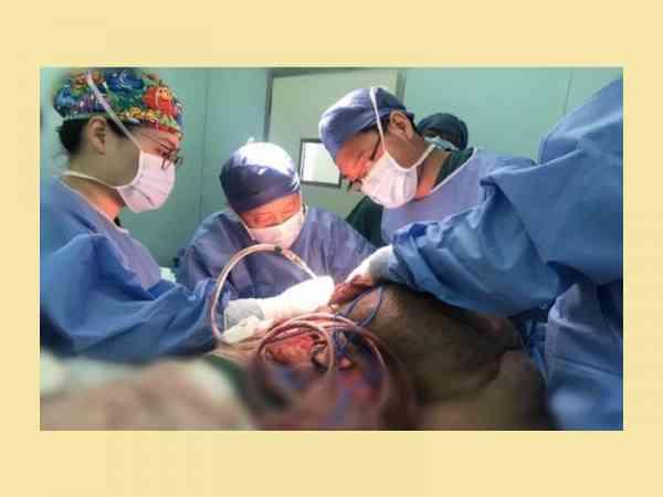 手术相当艰难,耗费33小时,动员上百位医护人员。