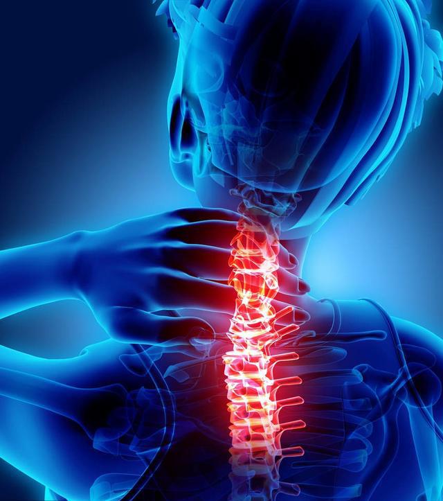 颈椎关节退化,会造成患者频频有落枕的现象。