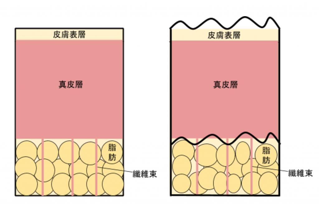 左为正常肌肤,皮肤表层显得平滑;右为橘皮组织,可能因为肥胖、皮肤弹性不好、荷尔蒙失调等等原因造成,可以看见皮肤表层已经变得不平整。