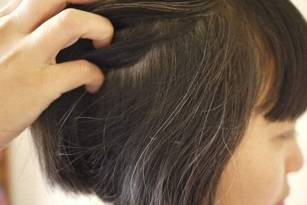Tóc đang xanh rờn bỗng nhiên bạc trắng ở 3 vị trí, không những biểu hiện cho sự lão hóa mà nó còn đang cảnh báo bệnh tật trong cơ thể - ảnh 1